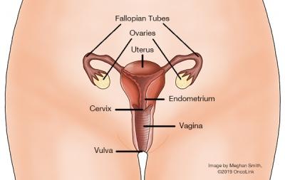 ovarian cancer hysterectomy
