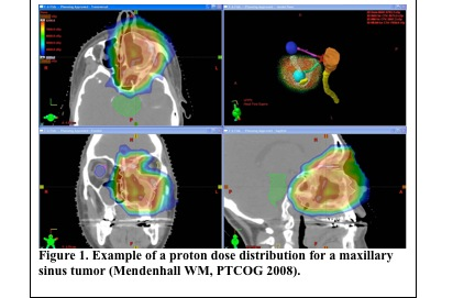 Example of a proton dose distribution for a maxillary sinus tumor - Mendenhall WM, PTCOG 2008