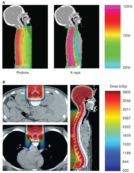 Figure 1.  Example of medulloblastoma treated with proton therapy