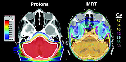 Figure 4.  Example of reduced cochlear and temporal lobe dose in a posterior fossa boost for medulloblastoma using protons (left) and IMRT (right)