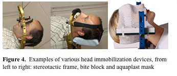 Figure 4.  Examples of various head immobilization devices, from left to right: stereotactic frame, bite block and aquaplast mask