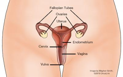 All About Ovarian Cancer Oncolink