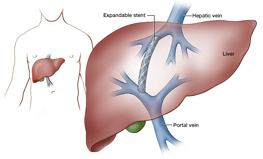 transjugular-intrahepatic-portosystemic-shunt